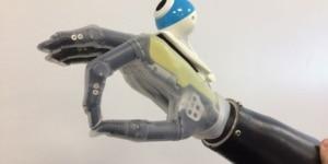 Main bionique © University of Newcastle