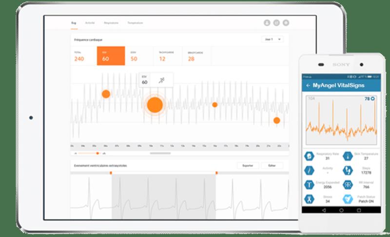 La start-up Devinnova (IoT pour la santé) a mis au point MyAngel Vitalsigns, un patch cutané à usage unique qui analyse les troubles du rythme cardiaque en vue de déceler le risque d'infarctus jusqu'à deux mois avant...